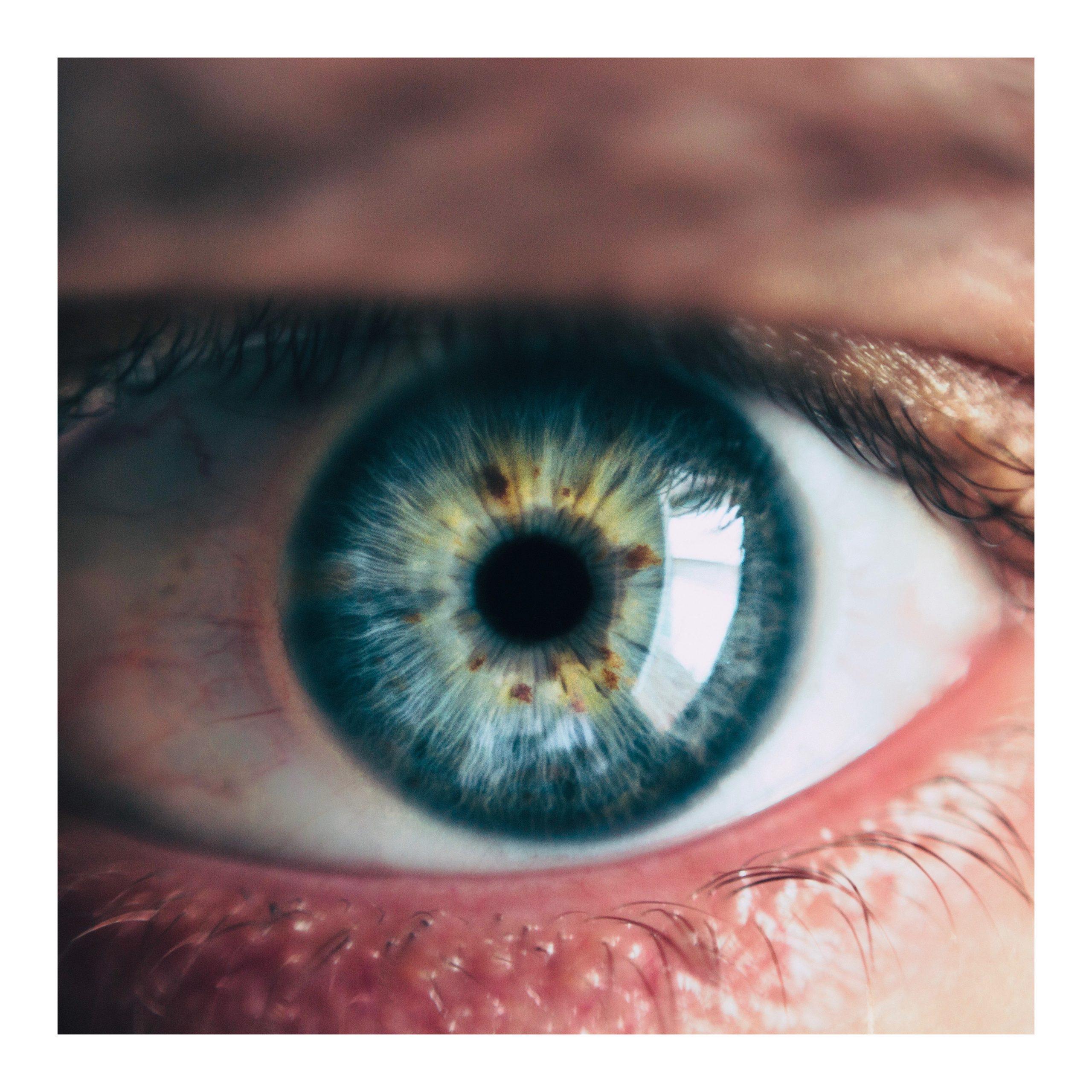 photo-iridologie-mikael-cavalier-naturopathe-ain-montluel